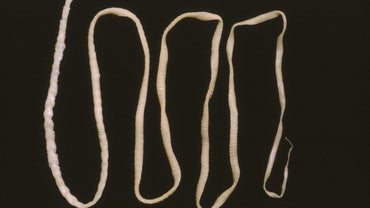 What Does a Tapeworm Look Like?