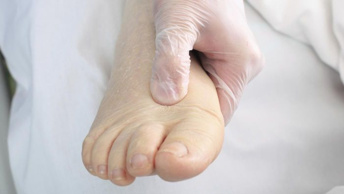 How do you treat edema naturally?