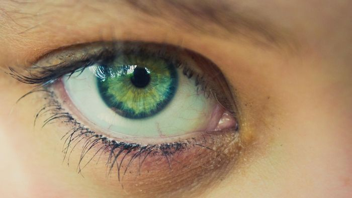 Is the cost for eye color surgery covered by insurance?
