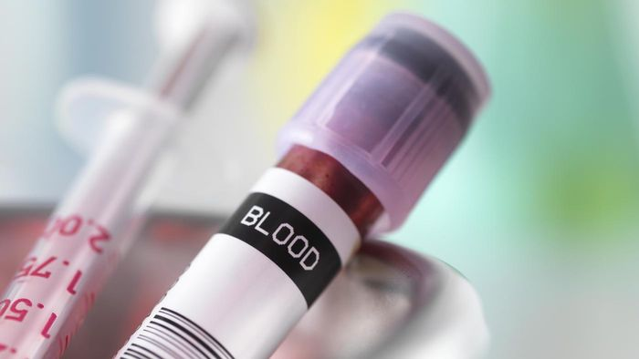 How can you get your blood tested cheaply?