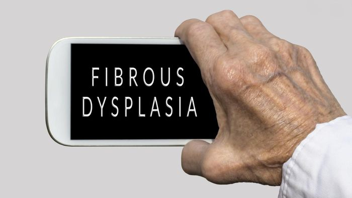 What Health Effects Does Dysplasia Have?