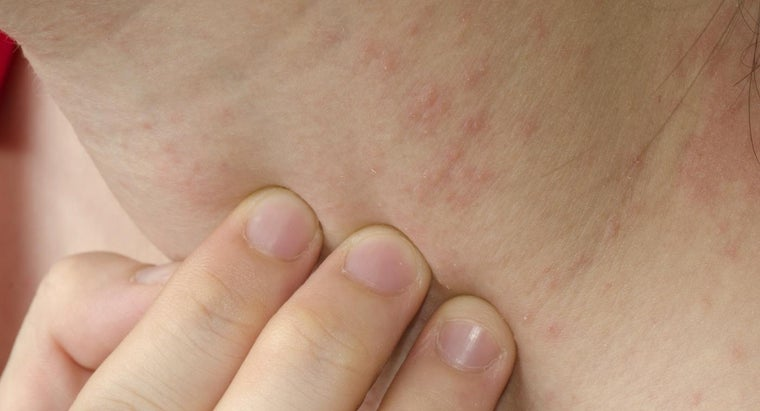 What Skin Conditions Do You Have?