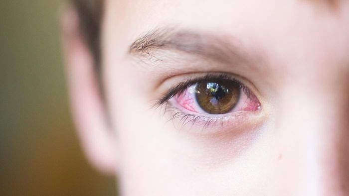 What Is the Best Treatment for Pinkeye?