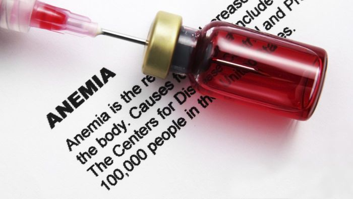 How Can You Test Blood Count Levels for Anemia?
