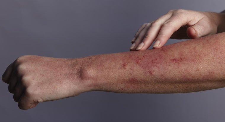How Do You Recognize an Allergic Skin Rash?