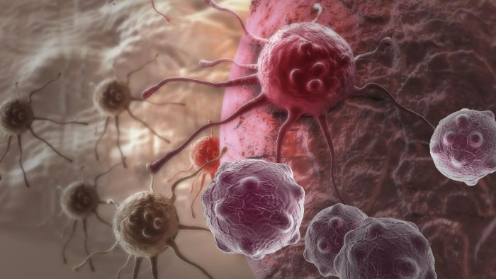 What are some facts about brain cancer?