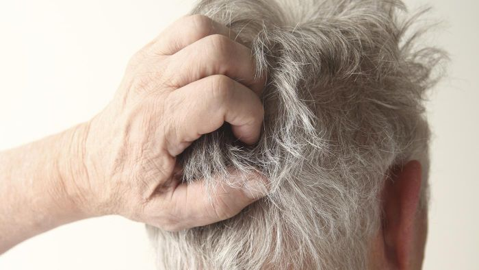 How Do You Treat a Severely Itchy Scalp?