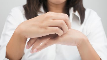 What Causes an Itchy Rash on Hands and Feet?