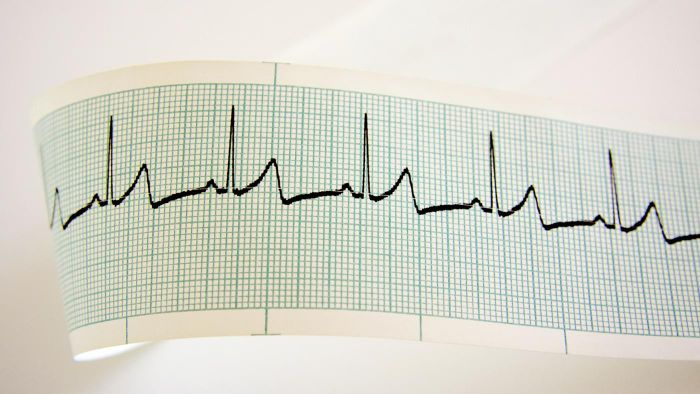 What Is the Average Heart Rate for a Woman?