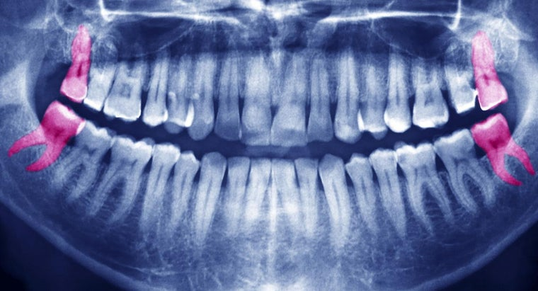 What Is the General Price for Wisdom Teeth Removal?