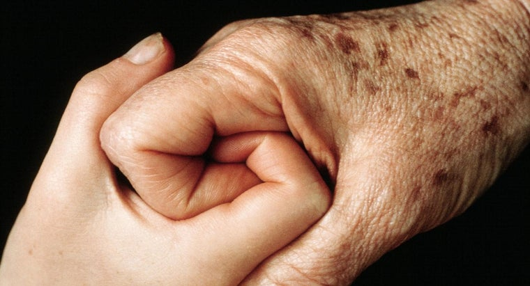 What Is Keratosis?