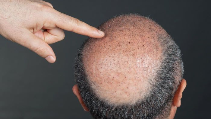How Do You Find Good Hair Transplant Doctors?