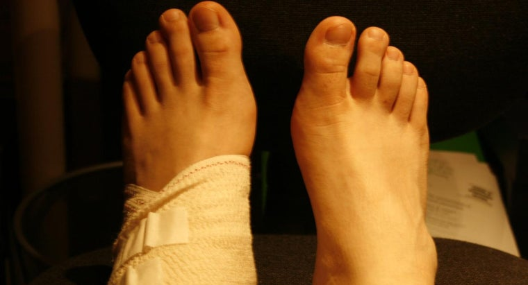 What Are Some Good Home Remedies for Sprained Ankles?