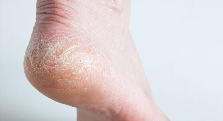 What Is a Good Home Remedy for Cracked Heels?