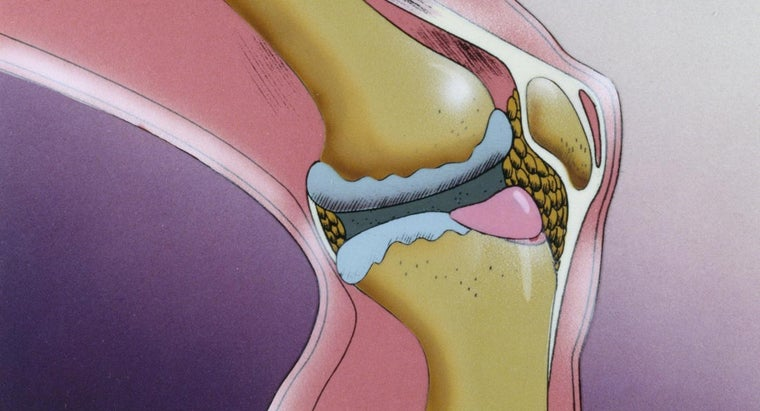 Is There a Cure for Osteoarthritis?