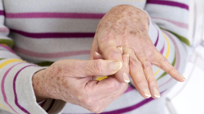 What are some remedies for arthritis in your hands?
