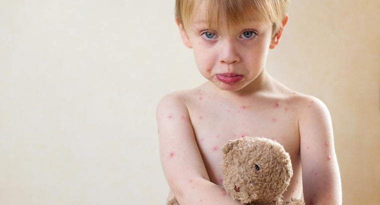 What Are Common Childhood Viral Rashes?