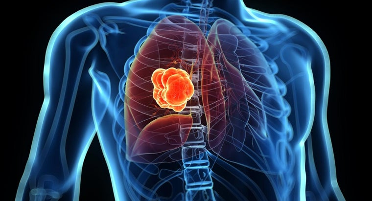 What Distinguishes Small Cell Lung Cancer From Other Cancer Types?