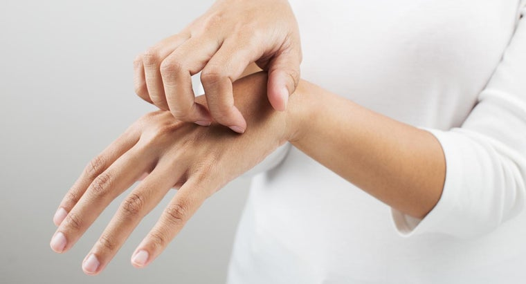 What Causes Itching Hands?