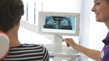 What Are Pros and Cons of Mini Dental Implants?