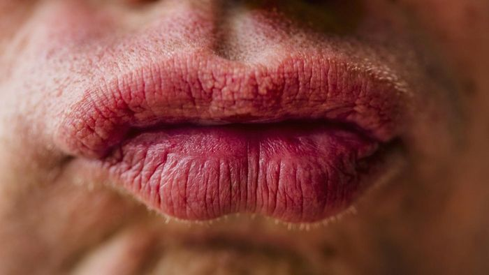 How Do You Treat Lips That Are Swollen Due to an Allergy?