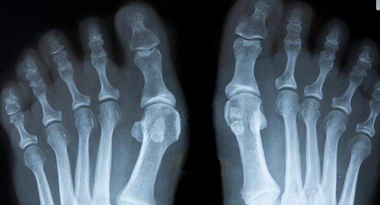 What Is the Treatment for Bone Spurs in the Feet?