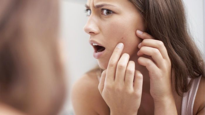 How Do You Remove Acne Scars?