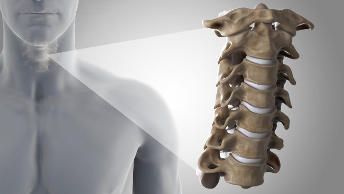 How do you fracture your vertebrae?