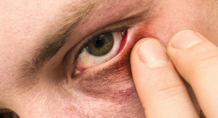How Do You Treat a Stye?