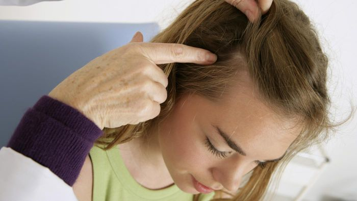 How Do You Keep Lice From Recurring After Treatment?