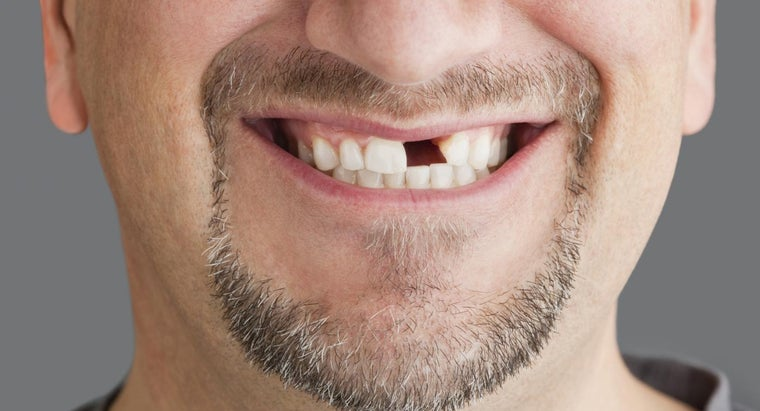 What Are the Main Steps of a Front Tooth Extraction Procedure?