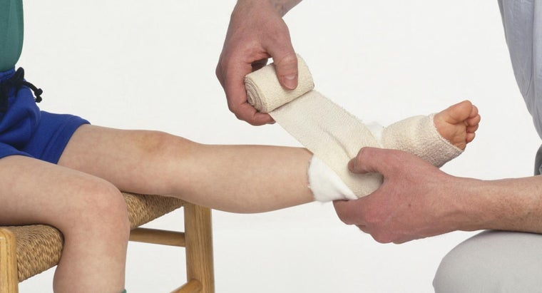 What Are Some Outward Characteristics of a Sprained Ankle?