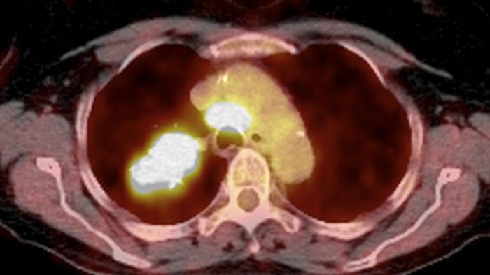 What Are the Signs of Lung Cancer?