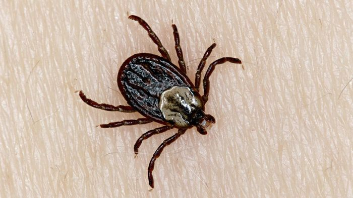 How do you remove a tick's head?