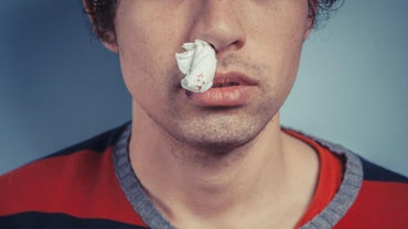 Can Nosebleeds Be a Symptom of Cancer?