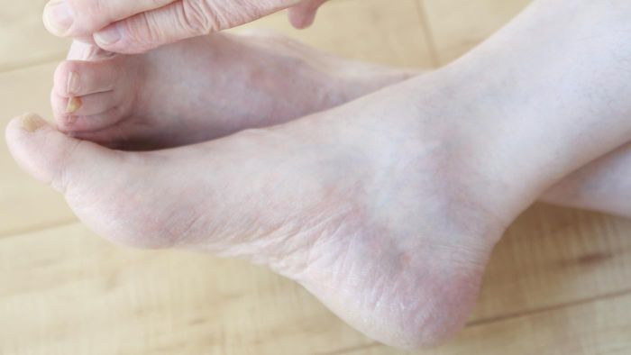 How Long Is the Average Recovery Time Following Ankle Replacement Surgery?