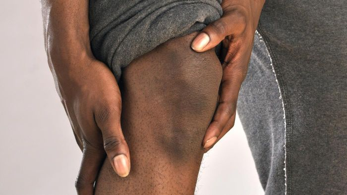What Is the Relationship Between Hip Bursitis and Leg Pain?