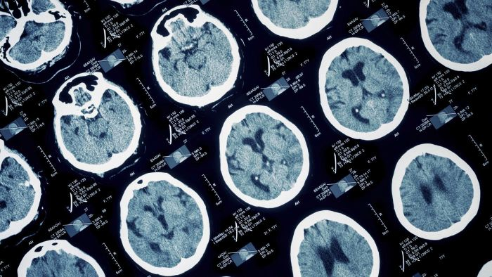 What Are the Causes of a Stroke?