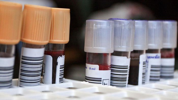 What Is a Neutrophils Blood Test?