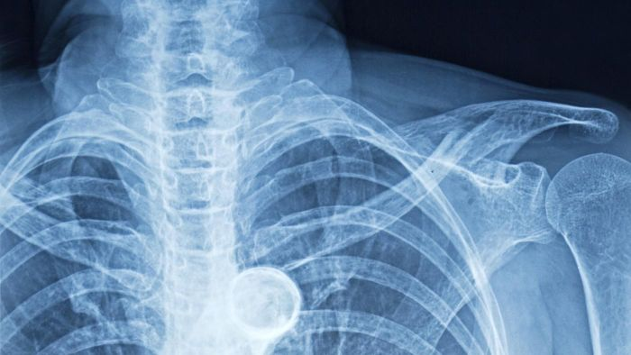 What Are the Symptoms of a Broken Rib?