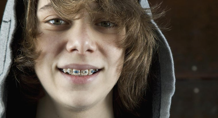 How Can You Lower the Cost of Braces?