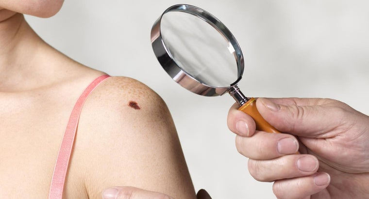 What Is the Deadliest Skin Cancer Type?