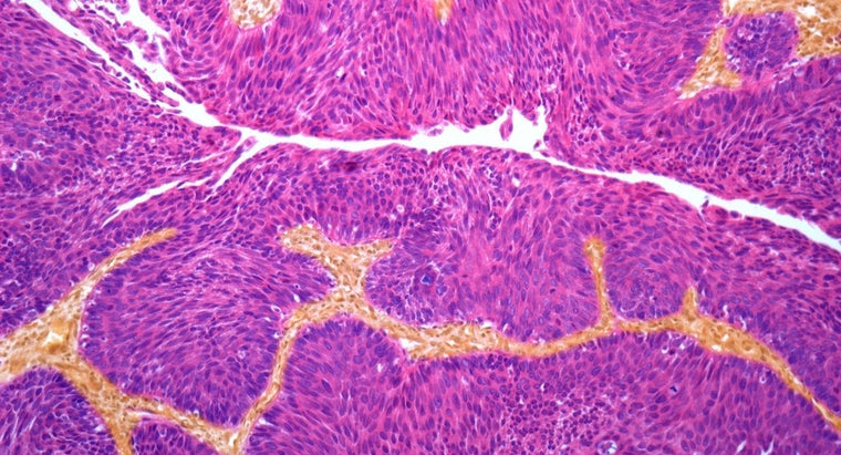 What Are the Treatment Options for Cancer of the Bladder?