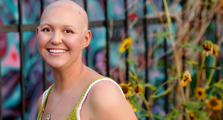 What Is a Treatment for Alopecia?