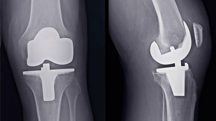 What Is a Knee Replacement?