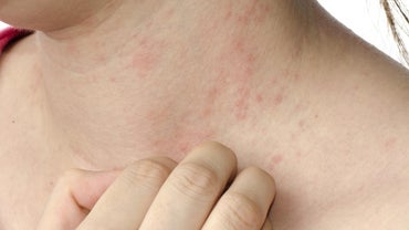 Are There Any Home Remedies for Eczema?