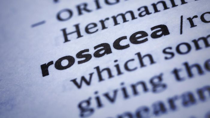 What Are the Symptoms of Rosacea?