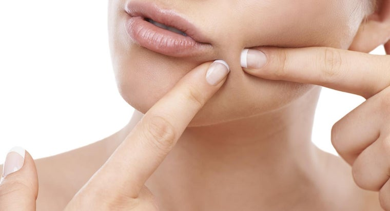 What Are the Effects of Pimple Popping?