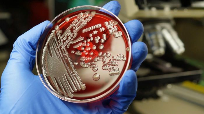 What Is the Cause of an E. Coli Infection?
