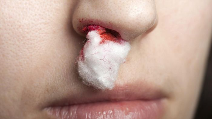 What Are Some Causes of Nosebleeds in Adults?